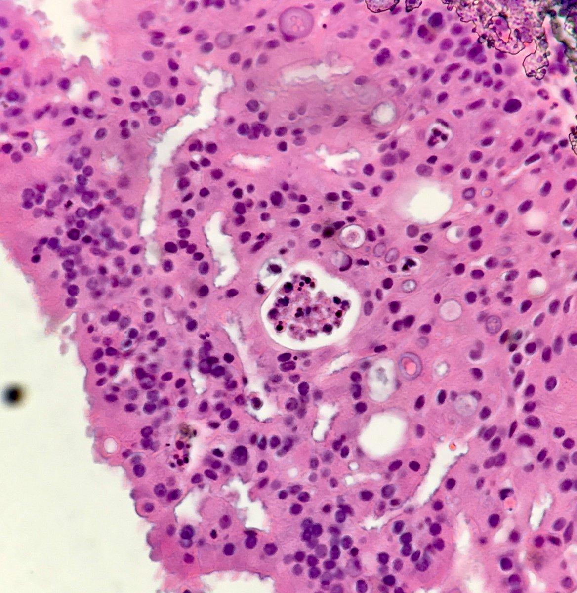 papilloma oncocytic)