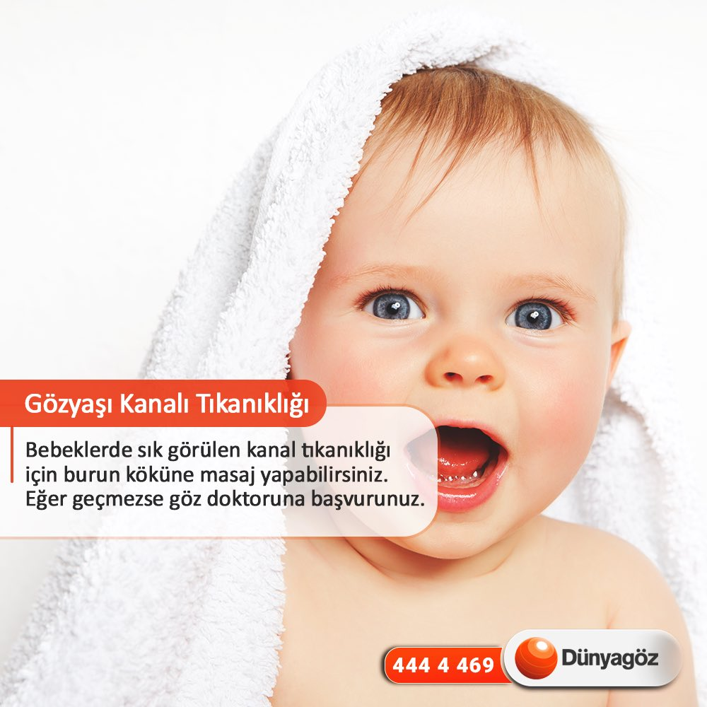Bebeklerde göz çapaklanması