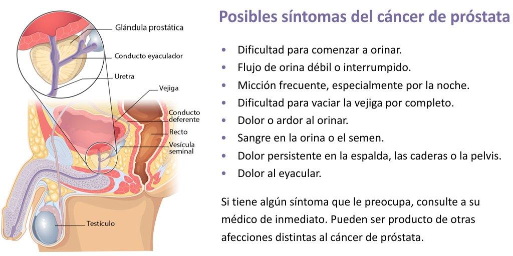 cancer de vejiga prostata