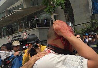 Hieren a una persona en la cabeza en El Rosal. Nos están atacando fuertemente. ¡Nosotros no somos el enemigo!#20VzlaResisteEnLasCalles https://t.co/aHAmwvGEXb