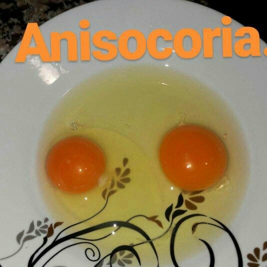 Psychophysiological correlates of anisocoria