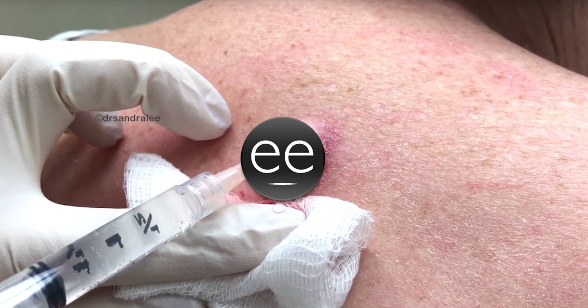 Dr Pimple Popper Drains A Truly Gnarly Inflamed Cyst On