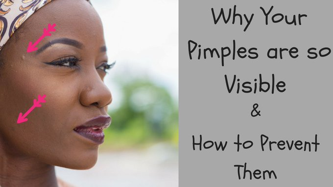 HERE'S WHY YOUR PIMPLES SPOTS ARE SO VISIBLE
