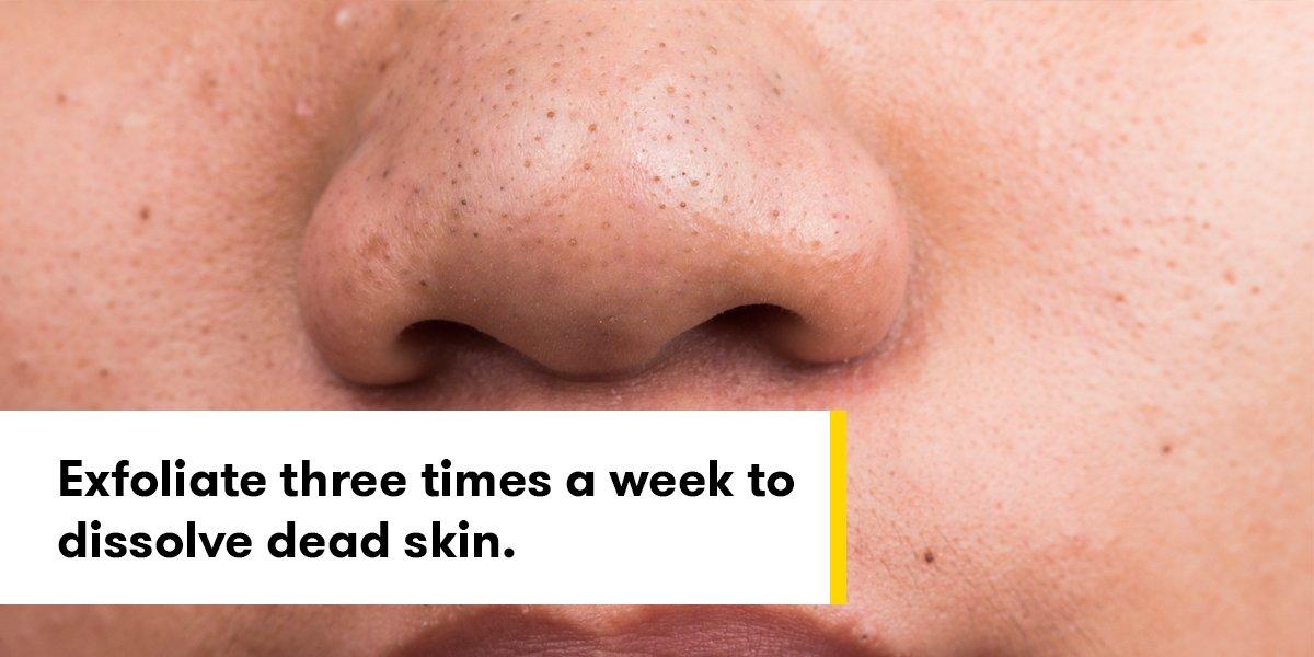 rid stubborn blackheads nose | Scoopnest