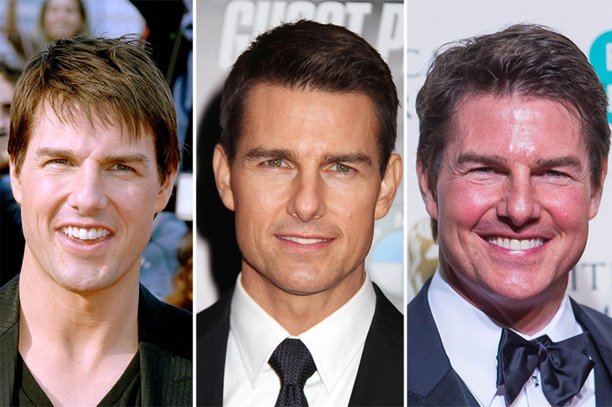 #scientology #Scientologyaftermath #Cult #Religion Tom Cruise BEFORE and  after 35 years of Scientology actual photos no  shoopingpic.twitter.com/vtHczjqSNn
