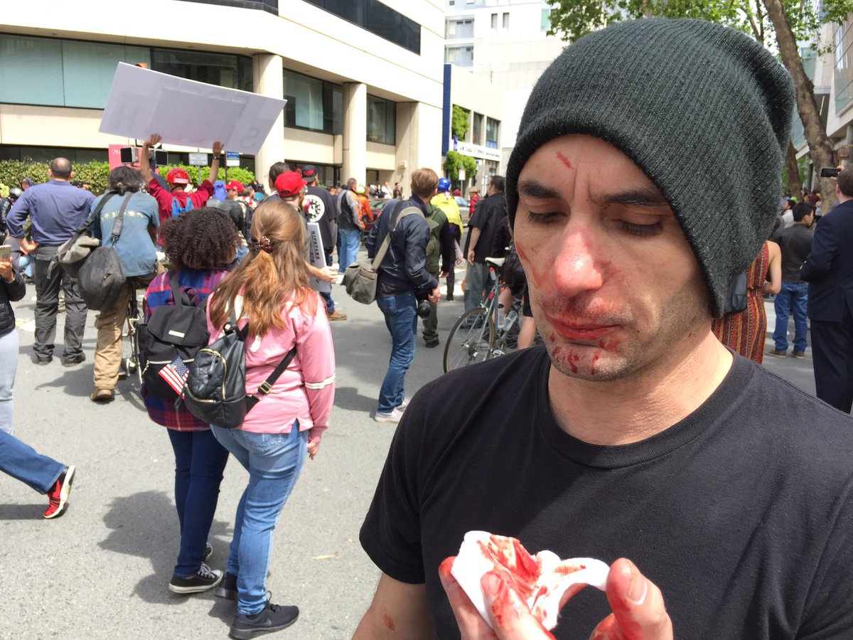 Trump supporters, protesters clash in Berkeley, California