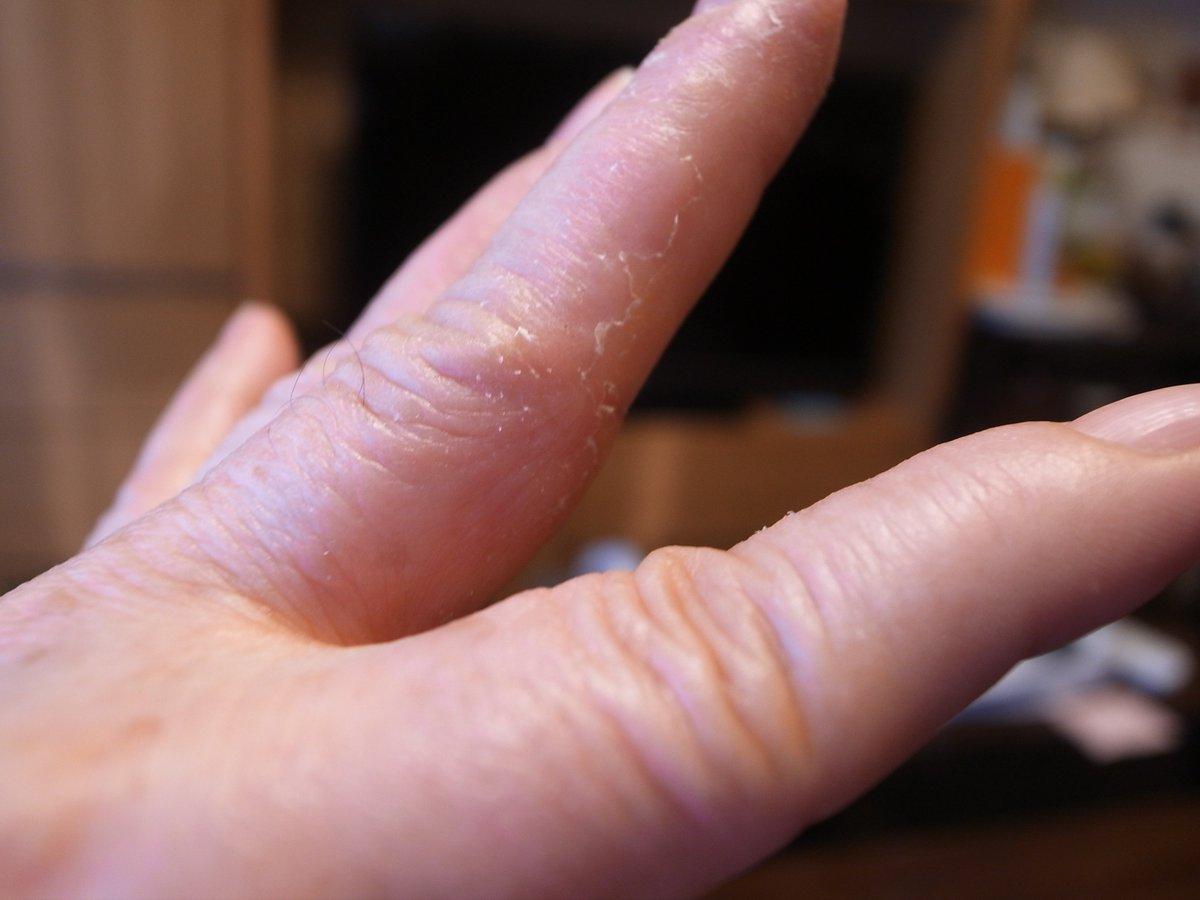 かゆい 指 水泡
