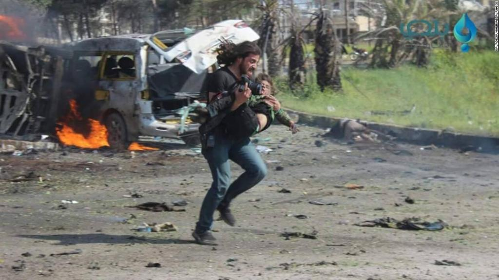 Syria photographer takes action instead of pictures, picks up injured boy