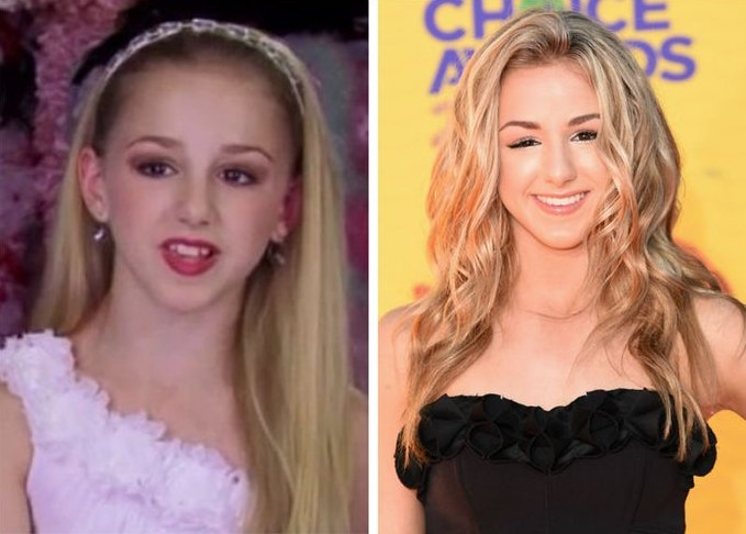 Life Style On Twitter All Grown Up See The Cast Of Dancemoms Then Vs Now Https T Co 0juxfvidsk Chloelukasiak