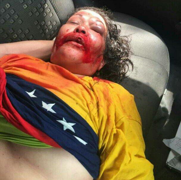 Agredida por la GNB en la Plaza Monumental en Puerto Ordaz, Irma Bello, 50 años, fue trasladada al Uyapar. Favor RT. https://t.co/hZUvdEppzd