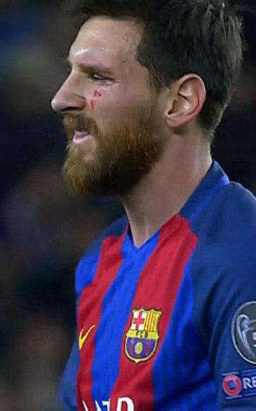 Wajah penyerang Barcelona Lionel Messi terluka setelah kalah berduel udara dengan gelandang Juventus Miralem Pjanic di Stadion Camp Nou, Kamis (20/4/2017)