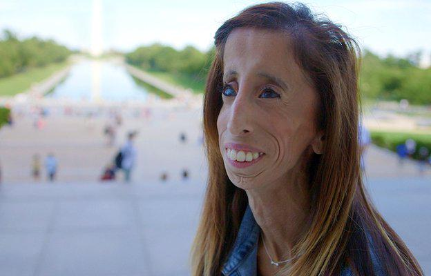 "Online bullies called Lizzie the ""world's ugliest woman"". Find out what she did about it http://t.co/4o9BQSwpgA http://t.co/Rw4Prip1Oz"