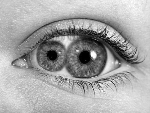Unexplained Mysteries | Woman Born With Two Pupils In One Eye