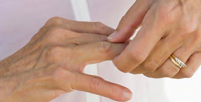 Artrosi: cause sintomi cura e prevenzione