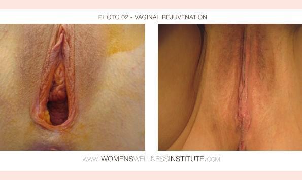 Signs of vaginal irritation