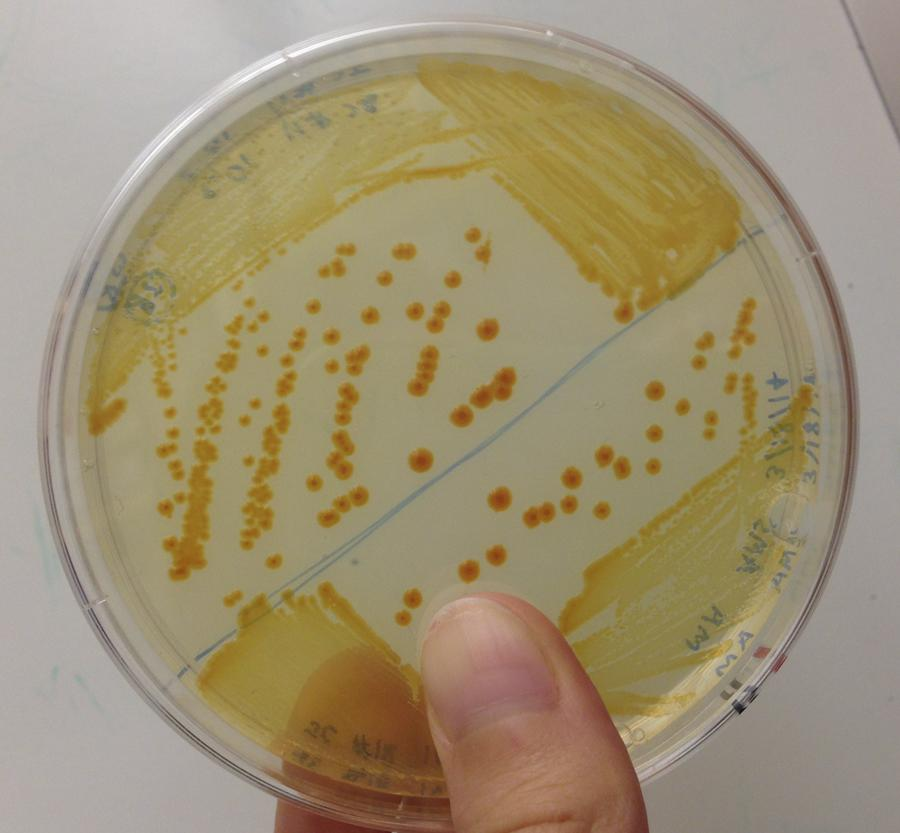 #IAmAScientistBecause there is so much to learn about bacteria! You never know what you'll find next! http://t.co/Xvt3wOsISp