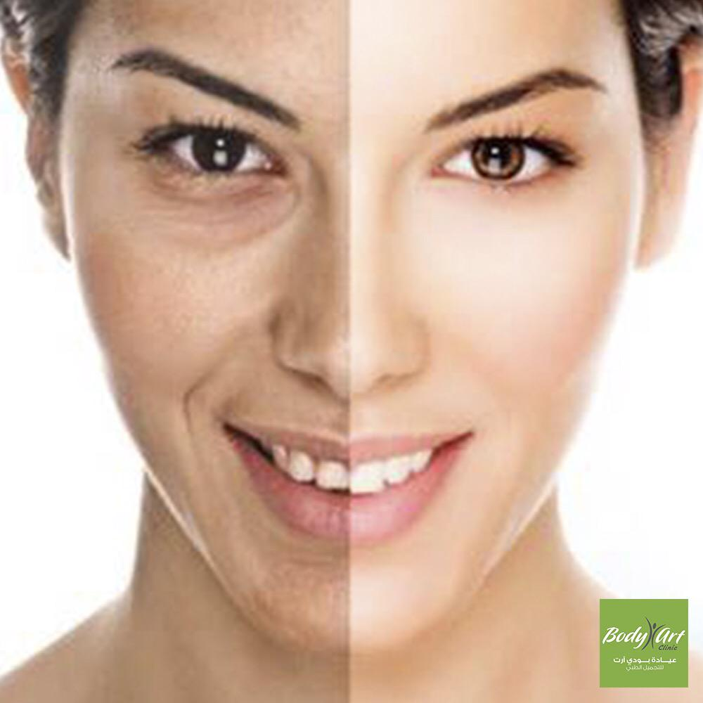 Arkan Plaza On Twitter Body Art Clinic Will Get Rid Of Your Face Wrinkles With Mesotherapy Technology Http T Co K3lh4uwjju