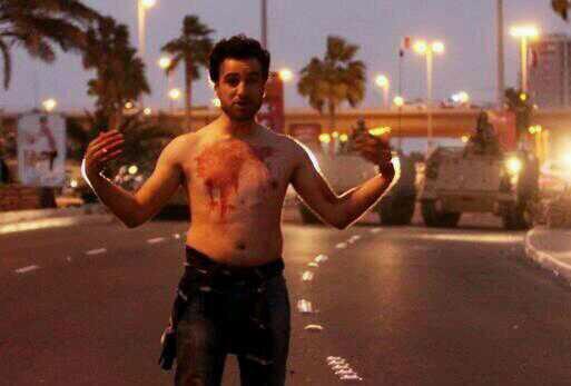 في اتصال هاتفي للمعتقل علي صنقور من سجن جو يفيد بآصابته في كسر في الحوض و الرجل اثر احداث سجن جو  #Bahrain #byshr http://t.co/TXxrmCVhkn