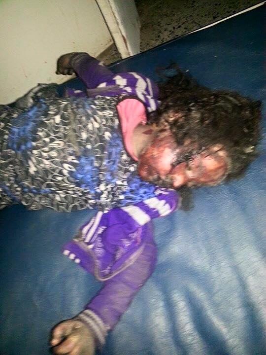 بالصور: اول استهداف للتواجد الايراني في اليمن #عاصفة_الحزم (عـــــاجل) CBbS7_BVEAEtYK6