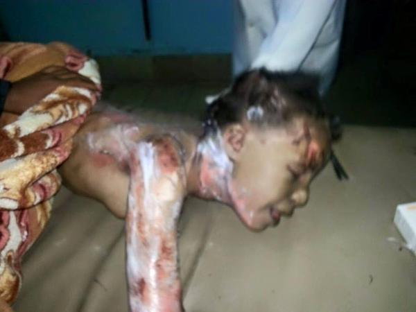 بالصور: اول استهداف للتواجد الايراني في اليمن #عاصفة_الحزم (عـــــاجل) CBbSdlYUgAIyZVA
