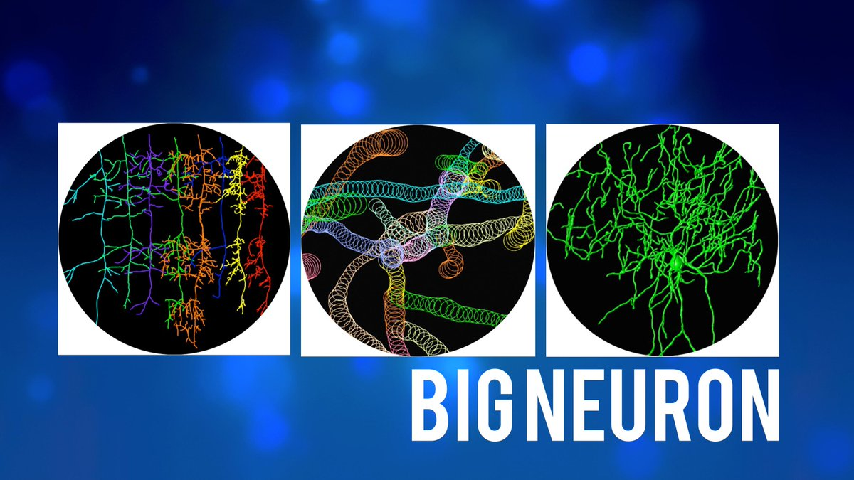 BigNeuron Project Aims to Untangle Brain Cell Structure