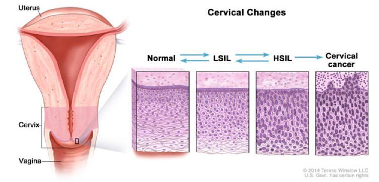 Hpv virus jazyk, Respiratory papillomas