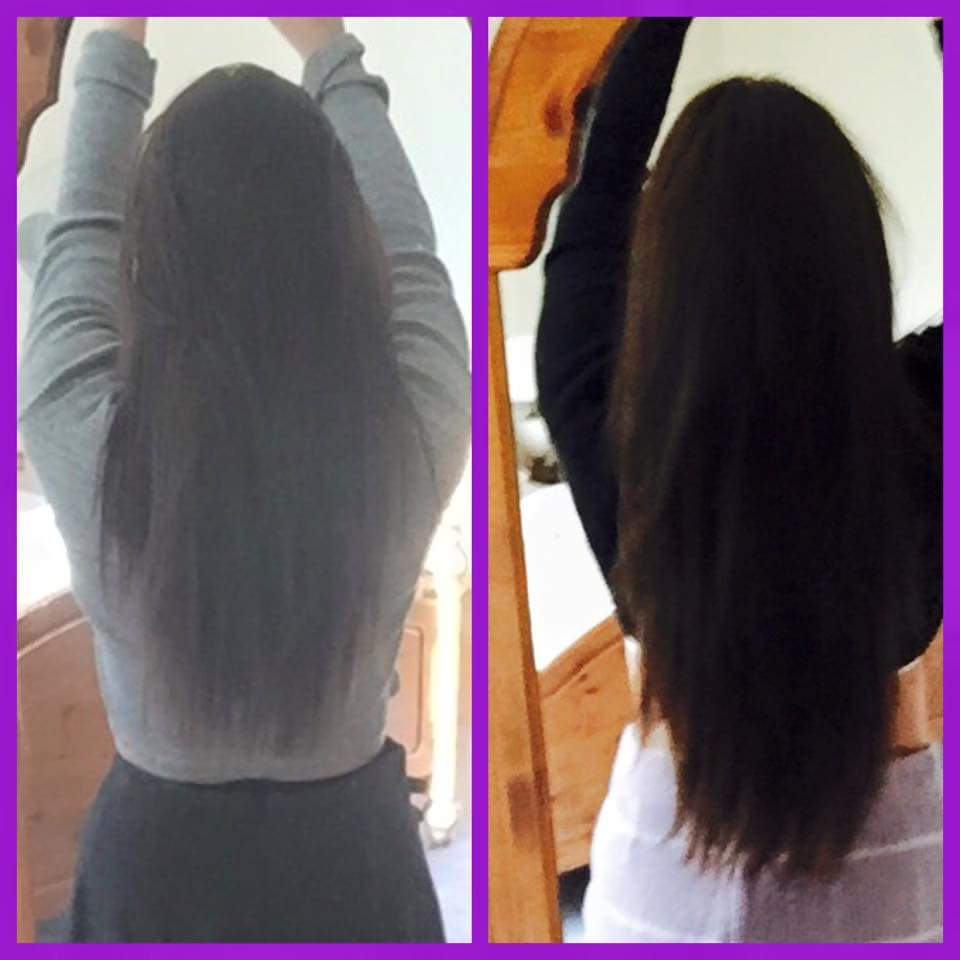 Amy Kean On Twitter Our Beauty Derri S Hair Growth Results After Just 3 Weeks Premium Capsules Juiceplus Http T Co Ac9orgbv