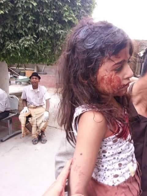 This bleeding girl's photo should have created outrage against Saudi Arabia across the world, but it didn't. Which means she is playing Holi with the Holy Sauds.