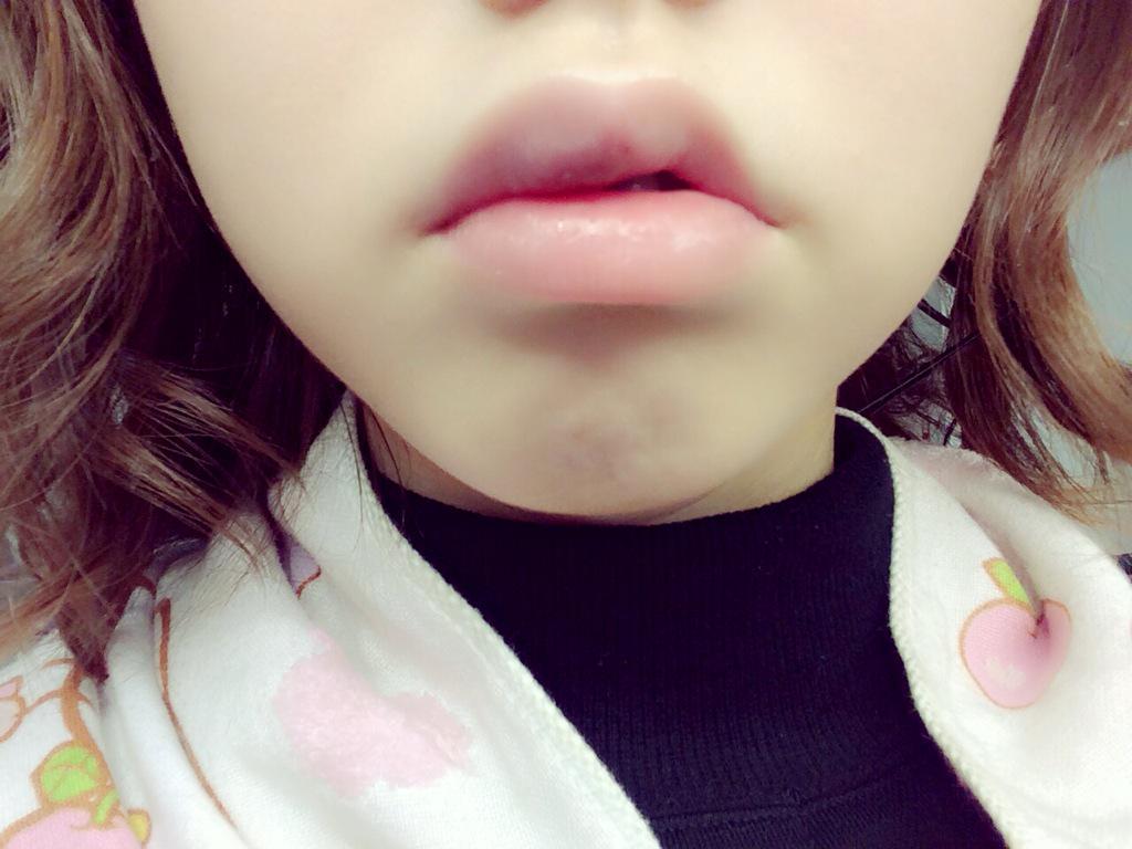 コロナ 唇 腫れる