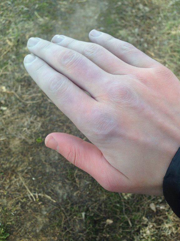 На холоде синеют руки