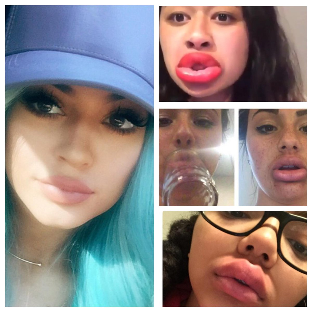 Girls!  Please stop the #kyliejennerchallenge. Learning to love urself takes time & shortcuts don't work #wtsp 11pm http://t.co/bcSbyESiCK