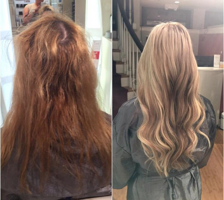 The Extologist On Twitter Before After Of My Client With Her