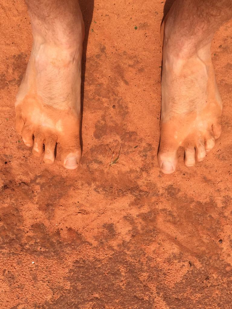 Here's what 10 days of tracking dinosaurs in the #Kimberley will do to your feet... #DinosaurCoast #UQ http://t.co/HQhFmk1xbE