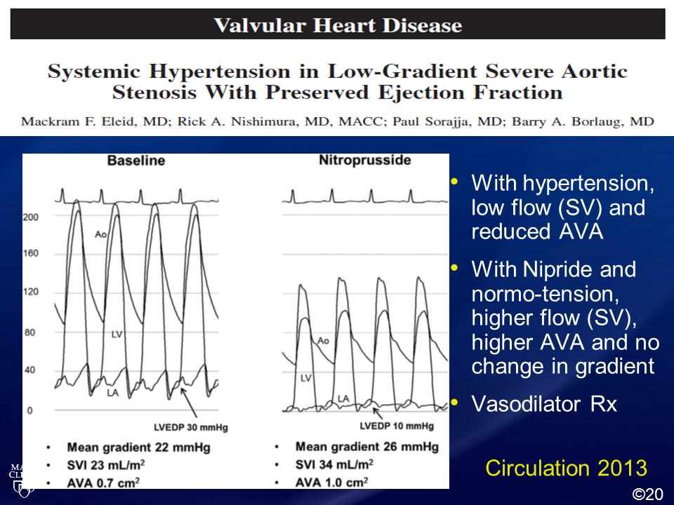 Treat hypertension first in patients with paradoxical low-flow low-gradient severe aortic stenosis #MayoCVCME