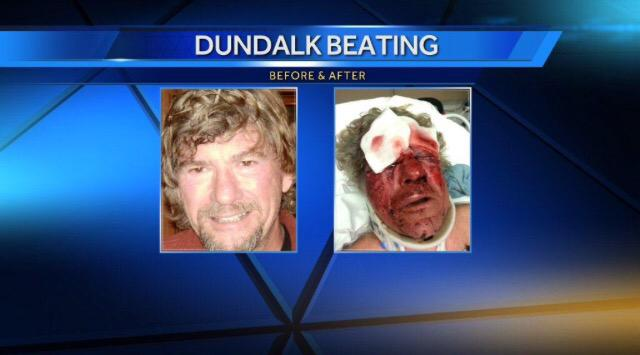 Before & After of Dundalk man beaten by students from Baltimore Community HS after he tried to break up a fight. http://t.co/Bdw7yWwCzL