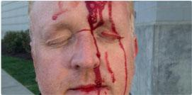 Journalists attacked and injured in Baltimore riots. http://t.co/scP6cVn1Sn http://t.co/93lVRZX8Dw