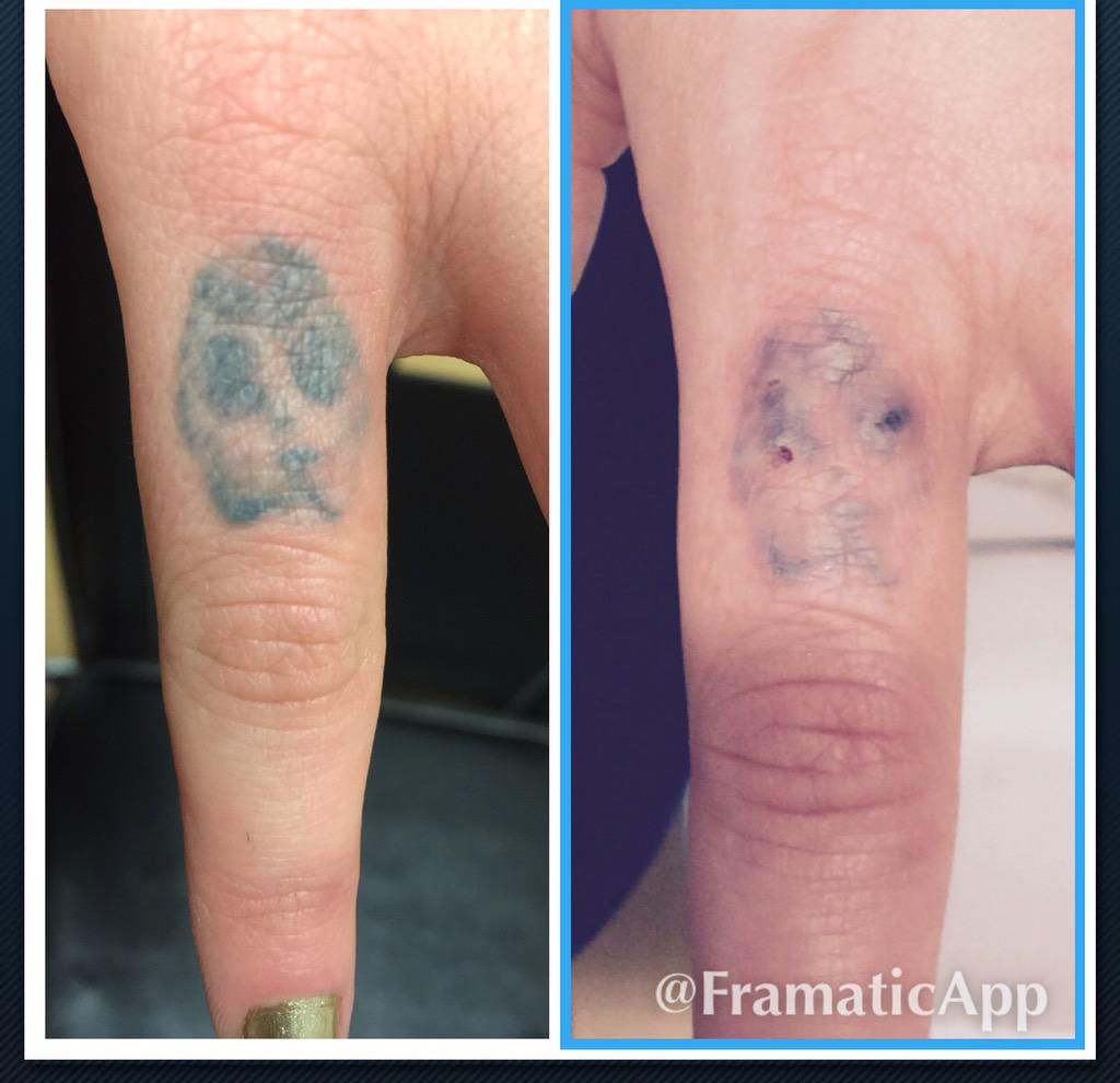 100 tattoo removal after 3 sessions laser tattoo for Dallas tattoo removal clinic reviews