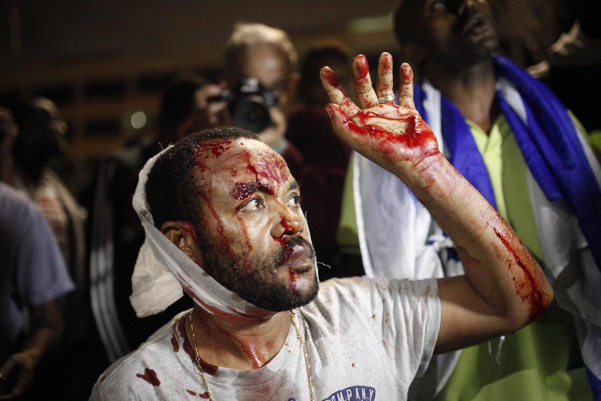 Wounded Ethiopian Israeli demonstrator