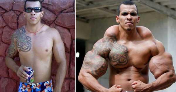 FOTO Romario Dos Santos Alves prima e dopo