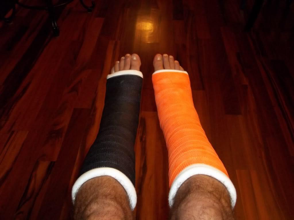 Boatengs ankles