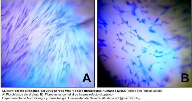Efecto citopático: las células pierden su forma característica y se rompen por acción del virus herpes #microMOOC http://t.co/xUMasF9Cok