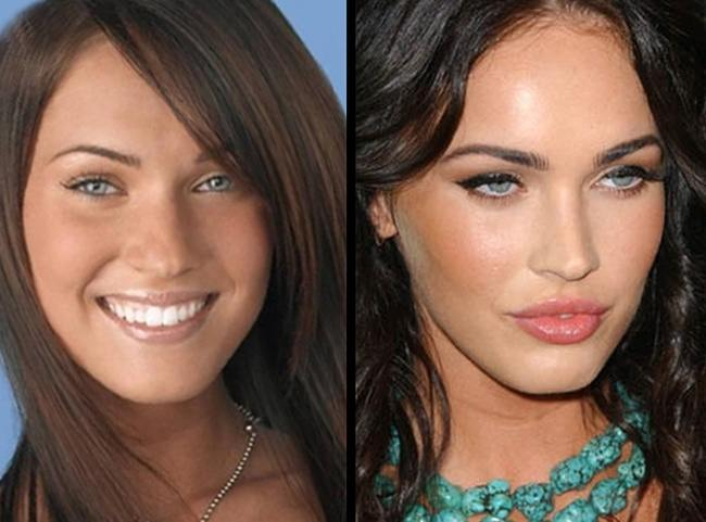 blush before and after. carbon blush clinic on twitter: \ before and after l