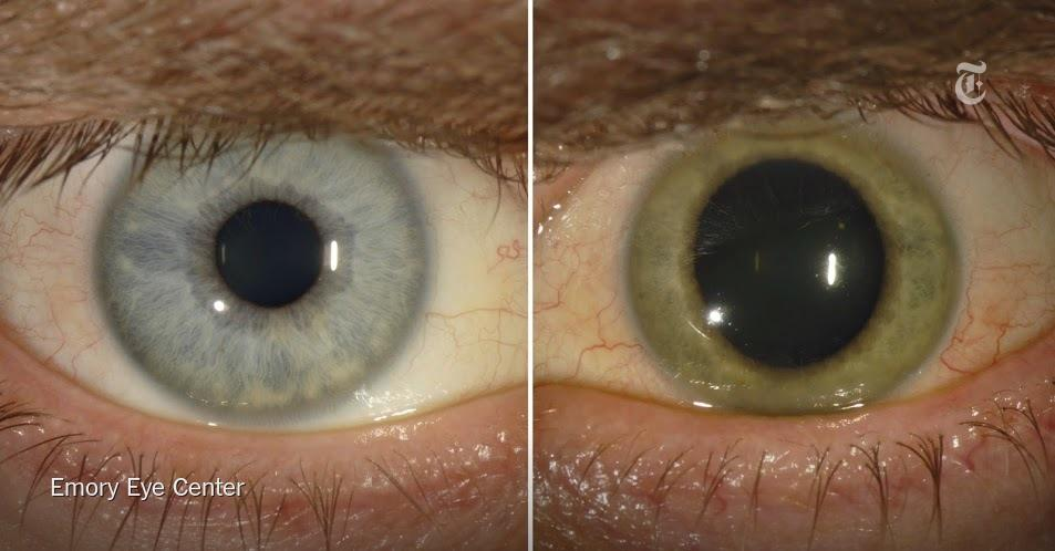 A doctor was told he had been cured of Ebola. But the virus was lurking in his eye http://t.co/sTi4RiW9qY http://t.co/SREfquENYV