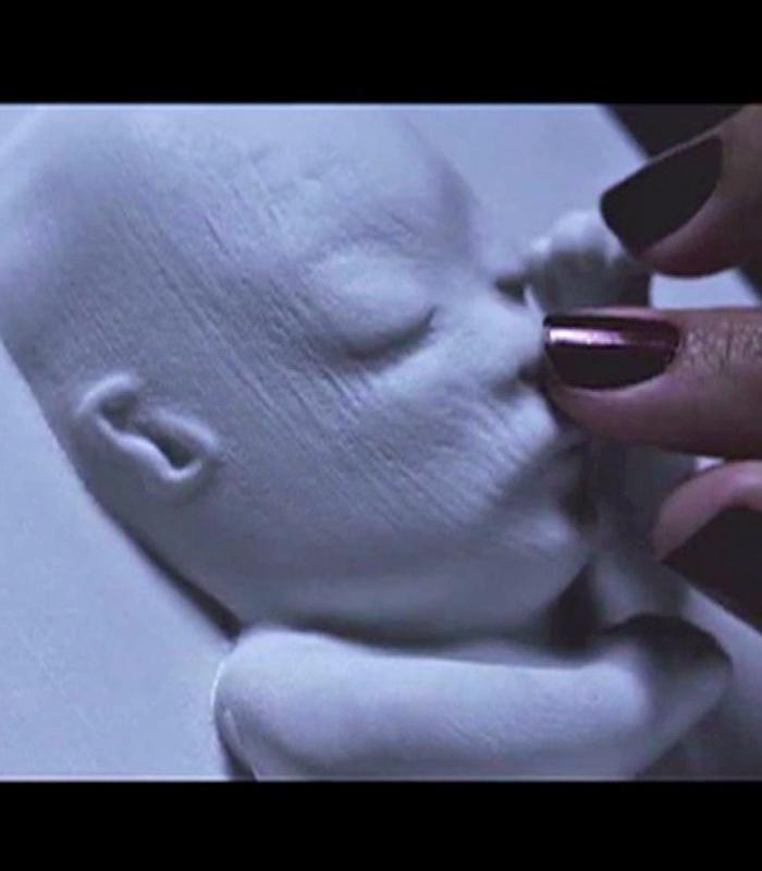 "Beautiful RT @KTLA: Blind woman able to ""see"" unborn child for the first time in womb with the help of 3D printer http://t.co/XOcwPNGhTL"