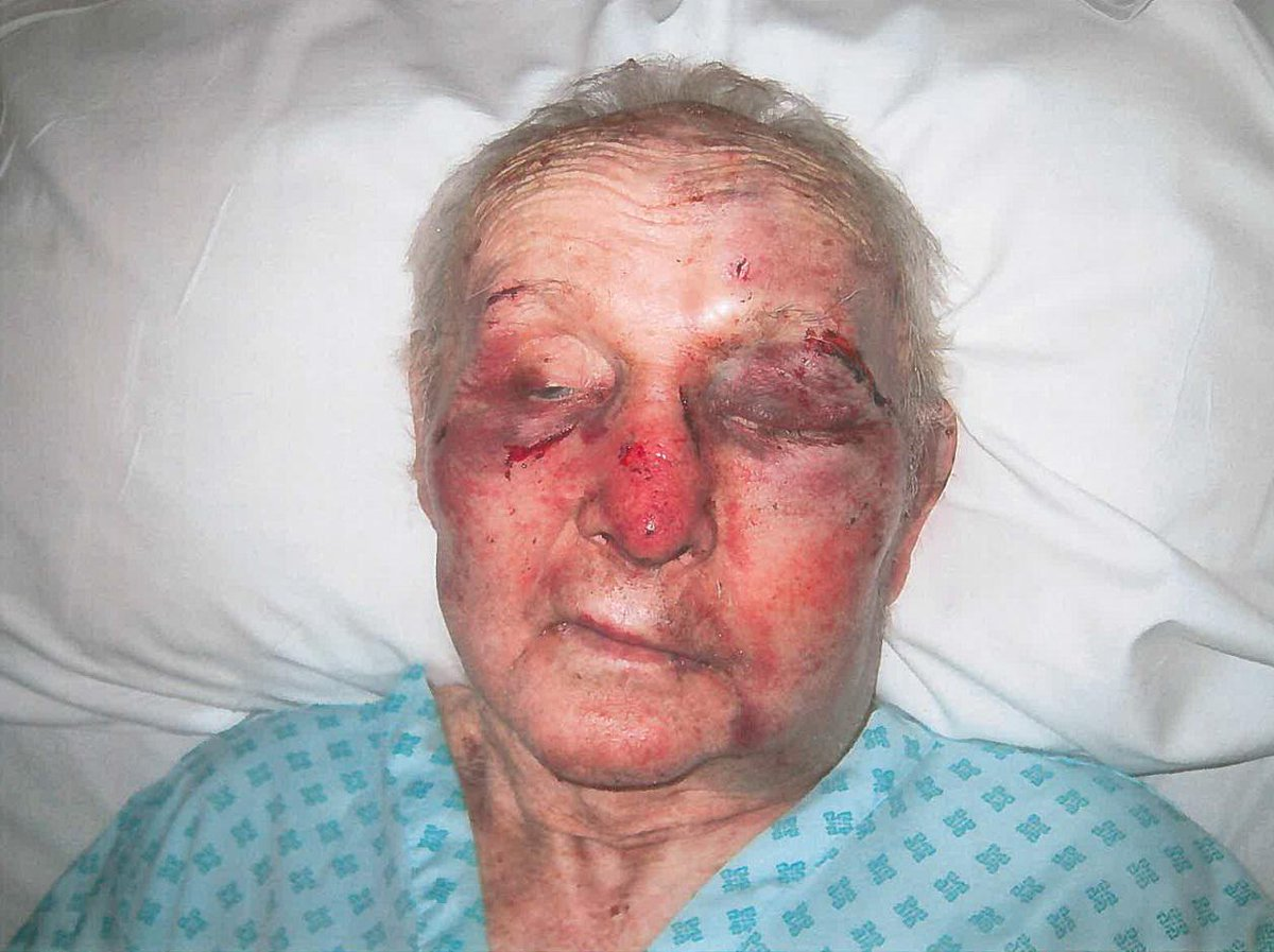 PLEASE RETWEET and help us find the person responsible for leaving an elderly #Coventry man like this. Call 101. http://t.co/Ht7CrMCktB