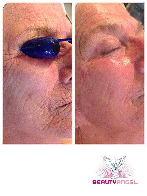 Angel eyes before and after-9839