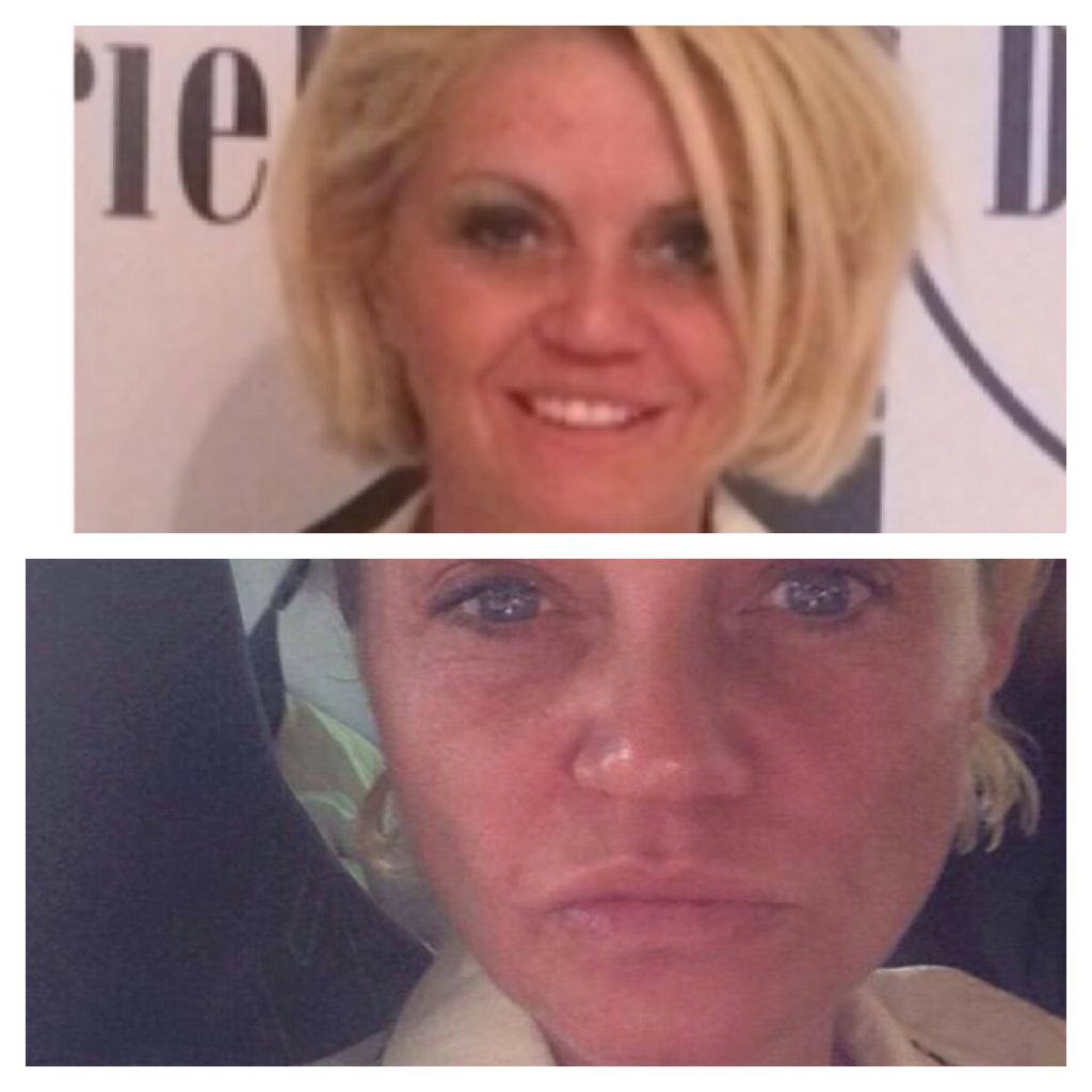 RT @DrMercik: Gentle lift by PDO threads beauty lift amazing result@RKMCOMMS @VicManship @westbrookdanni @DrMercik @AntiAgeingShow http://t…
