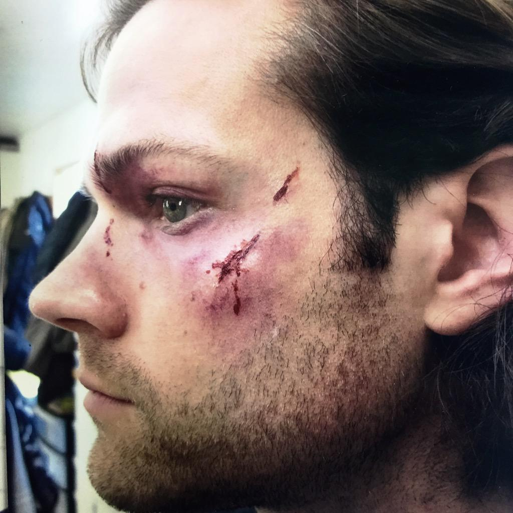 7e8d02ce8c68  SamWinchester beaten and bruised in EP.1023