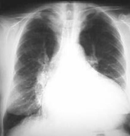 cardiomegalia hashtag on Twitter