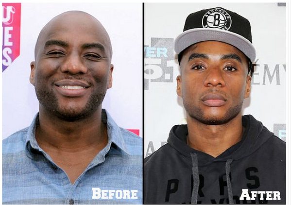 Charlamagne's dermatologist gives skincare tips in new ...